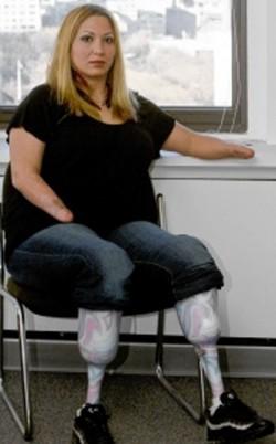 В США женщина-инвалид отсудила у больницы $18 млн