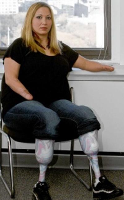 инвалид нет ноги познакомлюсь