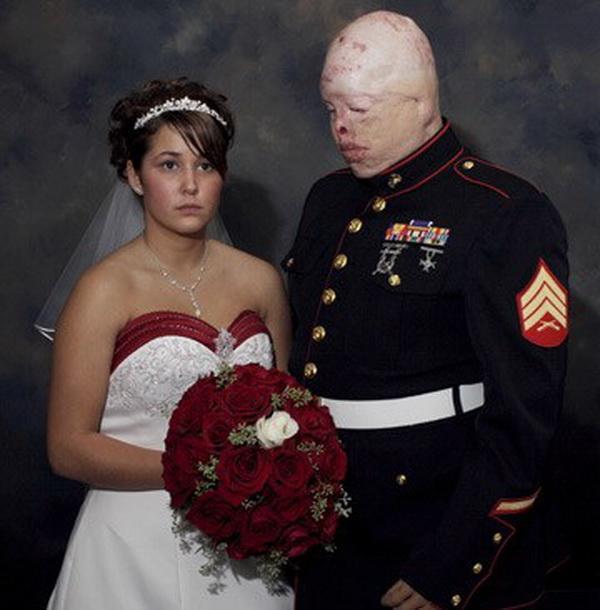 Рене+Ти: У моего мужа нет лица