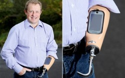 Впервые: смартфон встроили в ручной протез