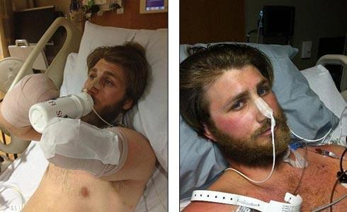 Несколько месяцев Тейлор пролежал в госпитале, увешанный трубками Фото: TaylorMorris.org