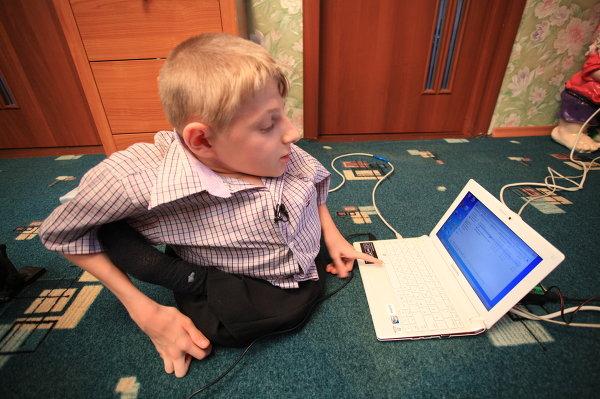 Хрупкий Саша, который не сломался: история «хрустального» мальчика