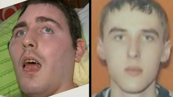 После выхода сюжета о парализованном молодом человеке на ТВ сибирячка опознала в нем пропавшего сына
