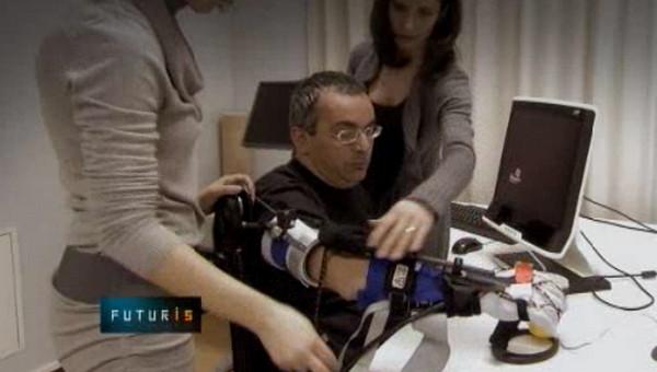 Рука-робот поможет парализованным людям