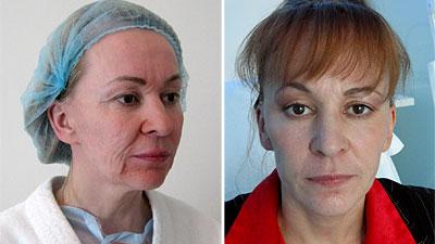 Фотографии Елены до и после операции