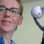 13-летний подросток, лишившийся руки, получил один из первых в мире сенсорных протезов