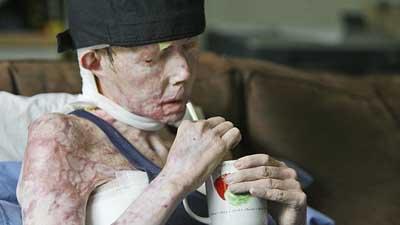 Долгое время женщина не могла обходиться без посторонней помощи (фото: AP)