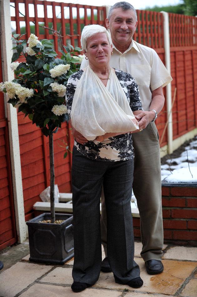 Британка, которой ампутировали ноги, пошла к алтарю на протезах