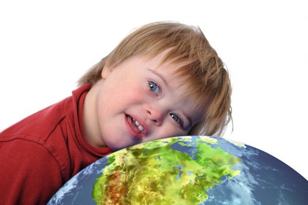 Лишняя хромосома, или «солнечные» дети: в Беларуси будут готовить родителей к воспитанию малышей с синдромом Дауна