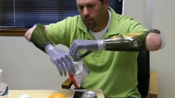 Джейсон Когер и его бионические руки