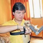 Венесуэлец соорудил себе роботизированный протез