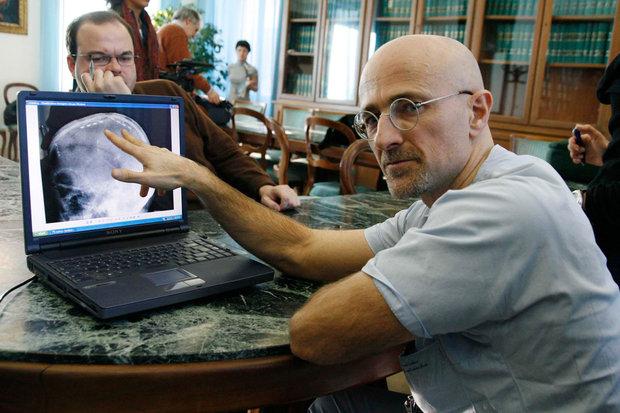 Ученый считает возможным пересадить голову человеку