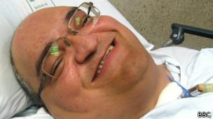 Мачаду покидал больницу на короткие сроки всего около 50 раз за всю свою жизнь