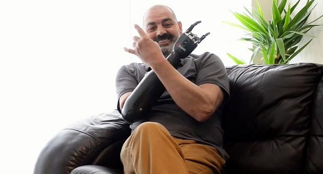 Обладатель самого совершенного бионического протеза руки: чувствую себя человеком и не могу перестать улыбаться