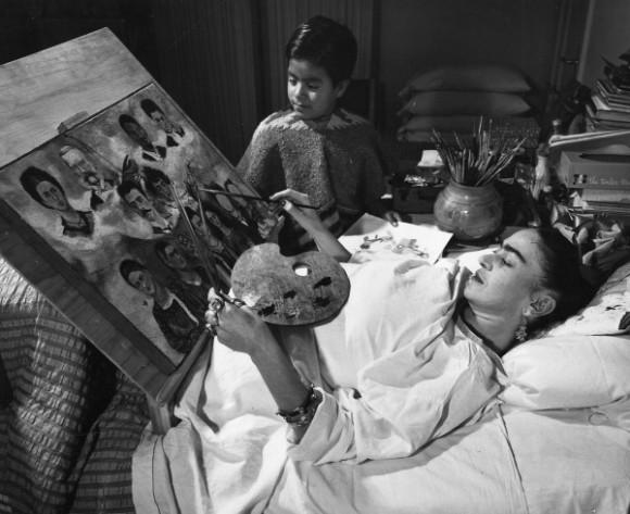 Они победили полиомиелит: Фрида Кало