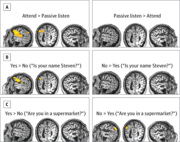 Изображение: JAMA Neurology