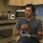 Роботизированная рука помогла американскому шеф-повару остаться в профессии