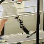 Искусственную ногу научили подчиняться мозгу