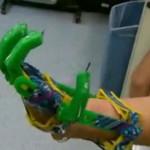 За пять долларов американец сделал своему сыну функциональный протез на 3-D принтере