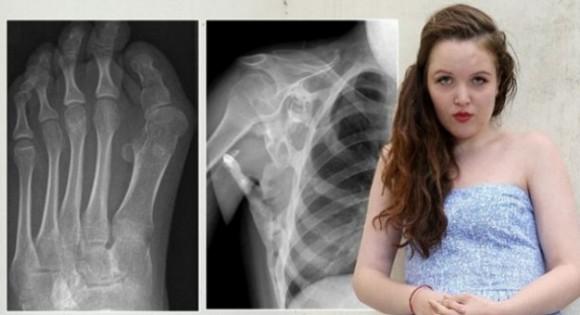 Юная британка из-за редкой болезни, превращается в статую