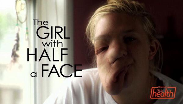 Канадская школьница с опухолью на лице стала звездой интернета