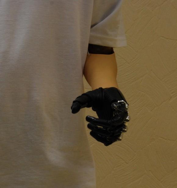 В Перми презентован уникальный бионический протез кисти