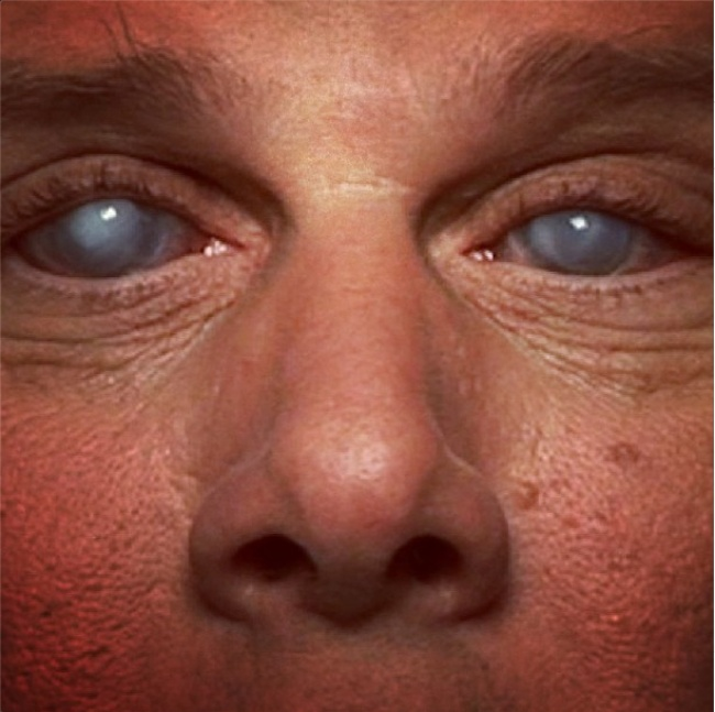 Слепит глаза от света что делать