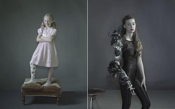Проект «Другие части тела» («Alternative Limb Project») Софии де Оливейры Барата (Sophie de Oliveira Barata)
