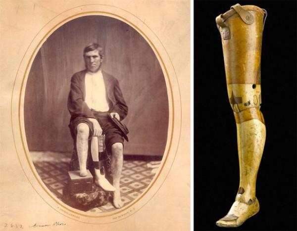 Слева, портрет эпохи гражданской войны, на котором изображен ветеран с типичным протезом ноги из дерева и кожи. Изображение предоставлено Национальным музеем медицины и здоровья.  Эта деревянная нога в стиле Англси была произведена в Великобритании в 1901 году. Изображение предоставлено Музеем науки / SSPL .