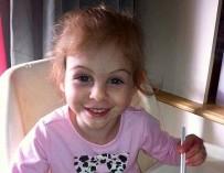 3-летнюю девочку, изуродованную питбулями, выгнали из закусочной из-за ее внешности