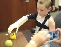Инженеры вернули мальчику руку с помощью 3D-принтера