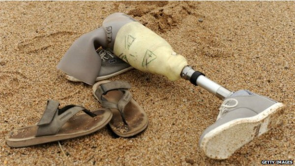 140811135123_prosthetics_artificial_leg_624x351_getty_nocred