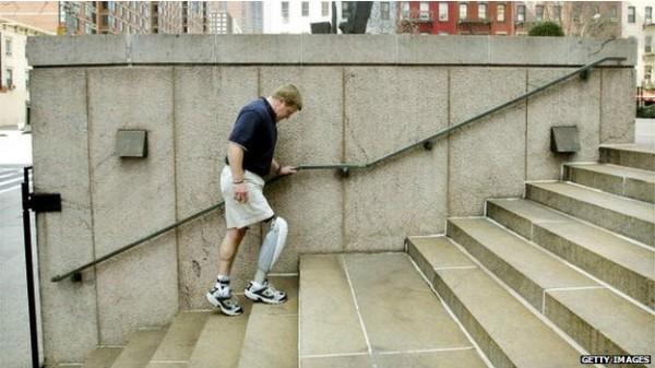 140811135340_prosthetics_artificial_leg_624x351_getty_nocred