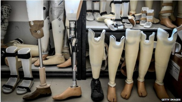 140811135435_prosthetics_artificial_leg_624x351_getty_nocred