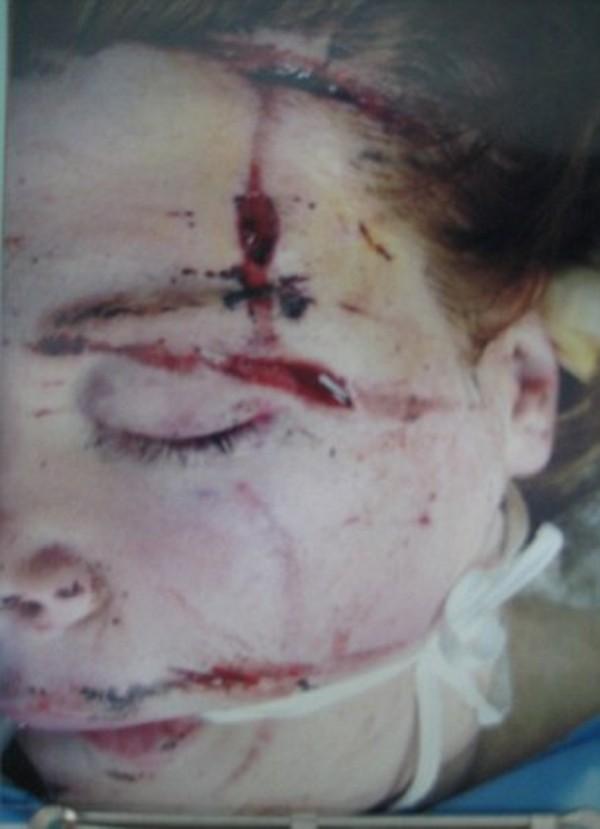Фото Ханны после взрыва, который произошел в 2007 году