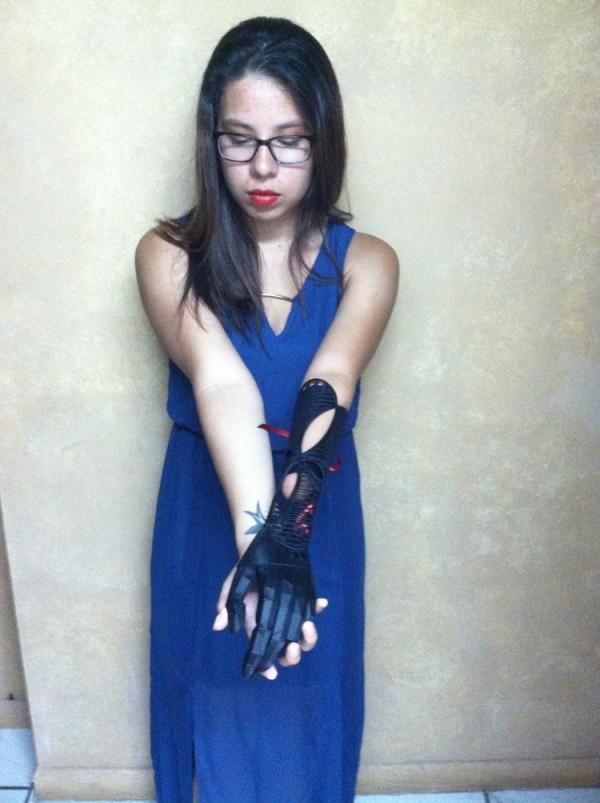 Вторая версия протеза руки для Ивании