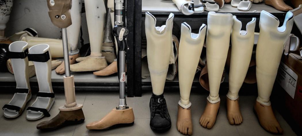 blatchford протез ноги
