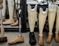 Создан протез ноги, который интегрируется непосредственно в кость