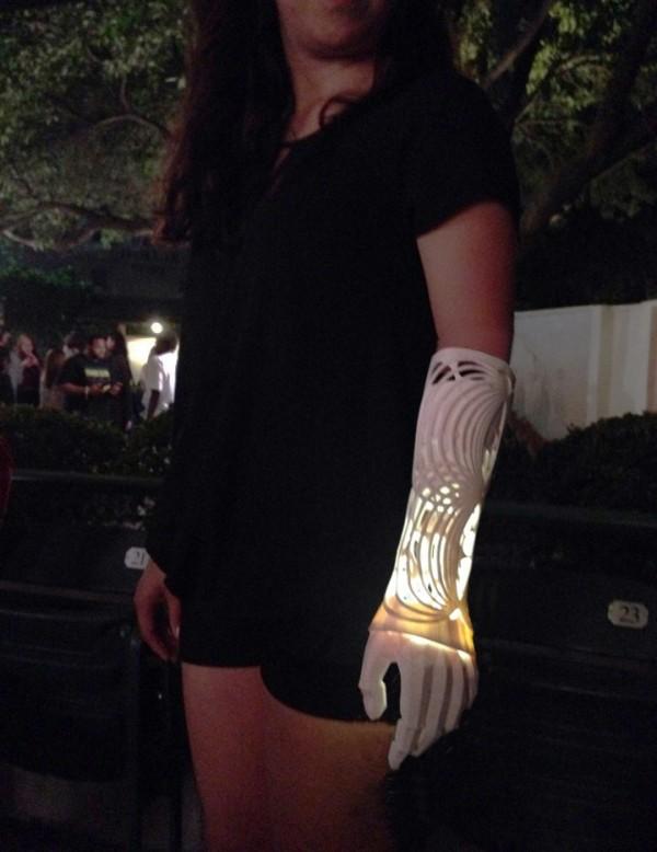 Первая версия протеза руки для Ивании