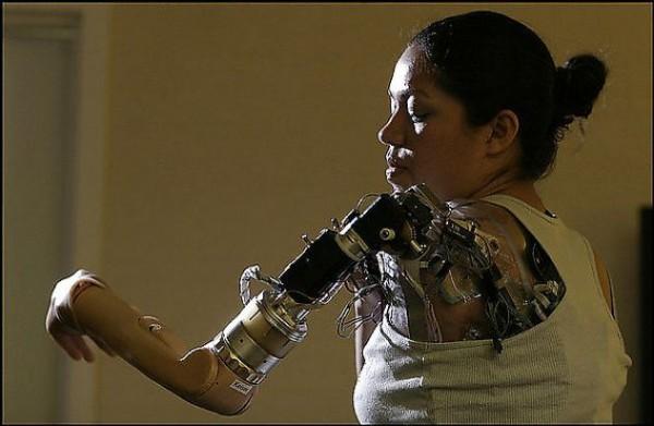 prosthetic3