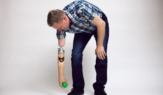 10-8-14-prosthetic-arm-1