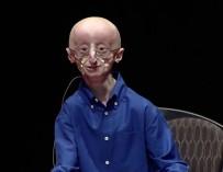 «У меня очень счастливая жизнь» (с) Сэм Бернс, который в 17 лет умер от старости