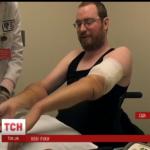 В Бостоне 40-летний американец получил от донора новые руки