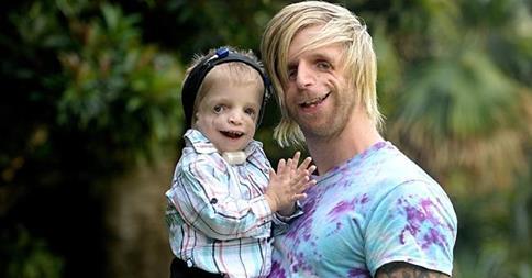 Йоно часто встречается с детьми, которые имеют такой же диагноз