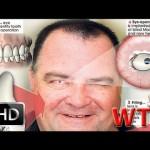 Незрячий мужчина впервые увидел свою жену, когда ему вставили в глаз часть зуба