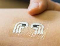 Уникальная электродная татуировка замеряет сахар не хуже анализа крови