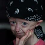 Умерла 17-летняя «девушка в столетнем теле»