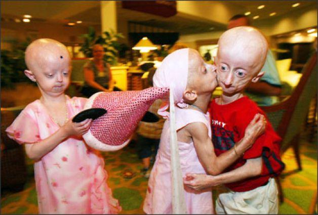 Встреча британских детей с прогерией. Слева - Хейли, справа - Сэм Бернс.