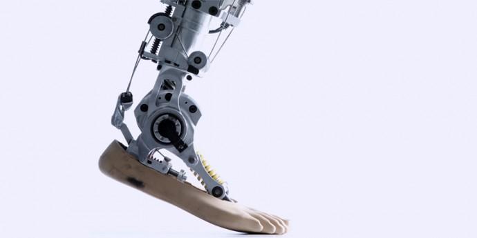 bionicheskie-protezy-nog-proekta