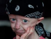 Девочка с телом 104-летней женщины скончалась в Великобритании